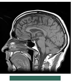 MRI brain image