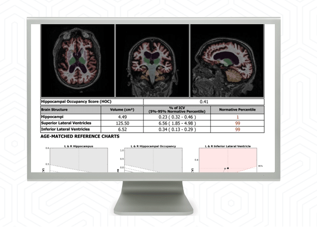 Image of NeuroQuant report on computer screen